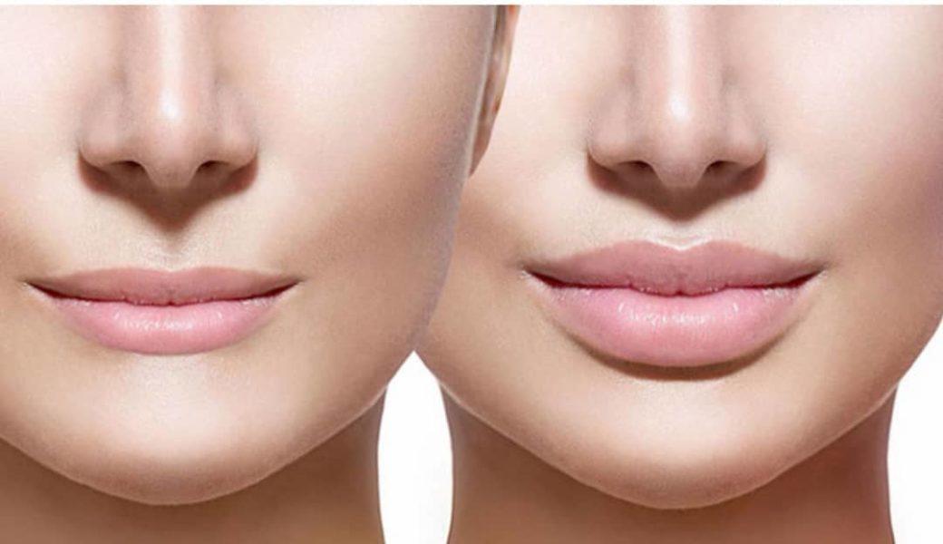 Der IRI PEN im VINOBLE Day Spa ist besonders gut geeignet, um nadelfrei mit Hyaluronsäure einen Volumenaufbau der Lippen sowie eine Konturenverbesserung im Gesichtsbereich zu erzielen. (Foto VINOBLE)